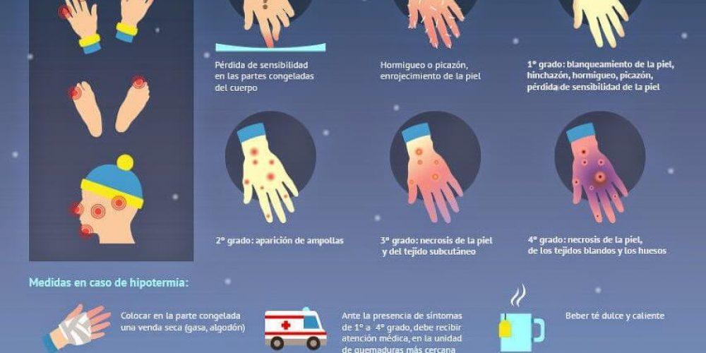 https://campingelcarespicosdeeuropa.com/wp-content/uploads/2014/12/HIPOTERMIA2-1.jpg